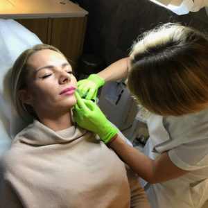 modelka podczas zabiegu powiększania ust